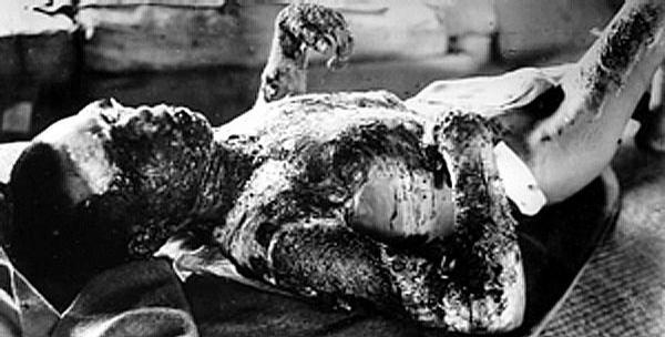 Hiroshima_victim1