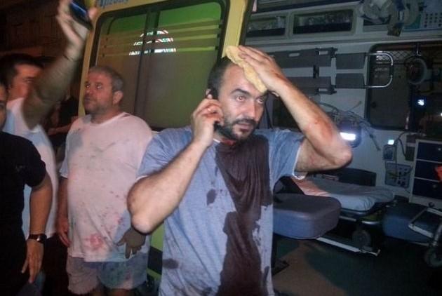 Ο πρόεδρος του Συνδικάτου Μετάλλου και μέλος του ΠΑΜΕ, Σωτήρης Πουλικόγιαννης, χτυπημένος μετά την επίθεση των Χρυσαυγιτών