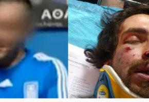 Η κατάθεση του φοιτητή που δέχθηκε την επίθεση από Χρυσαυγίτες: Με κλωτσούσαν στον αυχένα